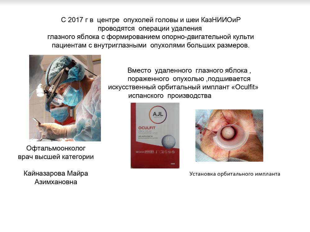 В центре опухолей головы и шеи КазНИИОиР проводятся операции удаления глазного яблока